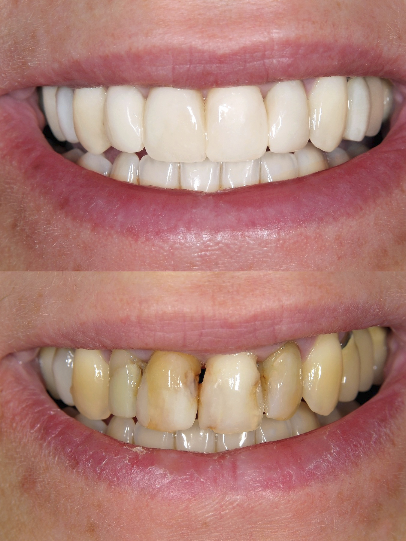 perfect smile veneers вред