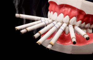 Tobacco and Dental Hygene