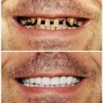 Cosmetic Dentistry Gallery of B&A, Dental Brothers, Mesa AZ