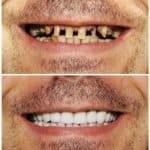 Cosmetic Dentistry Gallery of B&A, Dental Brothers, Mesa AZ