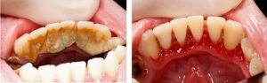 gum-disease-tartar-bacteria-build-up