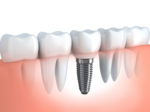 Myth: Dental Implants are Unsafe