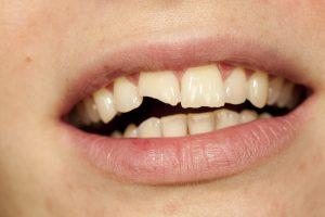 Cracked or Broken Teeth