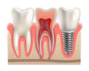 Dental Implants Cause Migraines