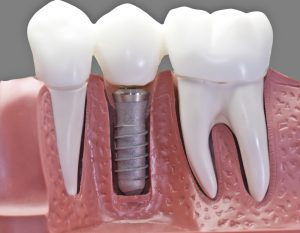 Dental Implants Are Painful