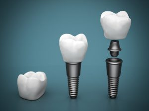 Implants May Be Stronger Than Natural Teeth