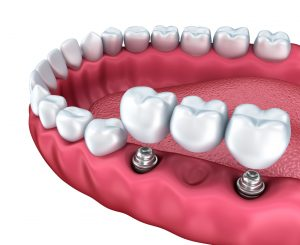 Dental Implants Require Special or Extra Care