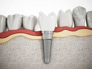 Most People Don't Really Need Dental Implants