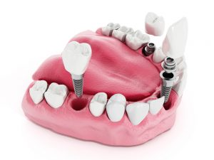 The Development of Modern Dental Implants