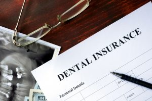 Dental Implants and Insurance