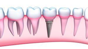 After the Dental Implant Procedure