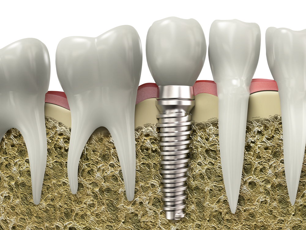 Why Dental Implants are Important