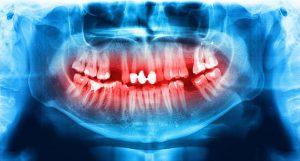 Pulled or Lost Teeth