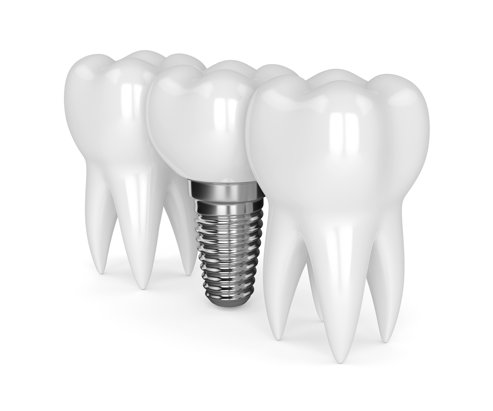 5 Reasons Dental Implants Fail