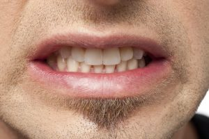 What Causes a Chipped Tooth