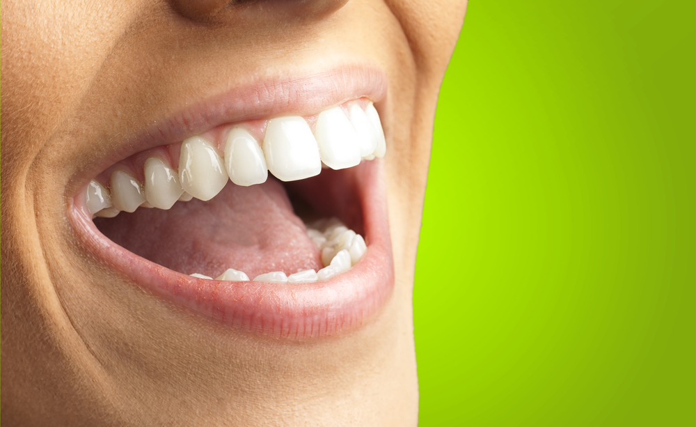 Switching from Dentures to Dental Implants: What You Need to Know