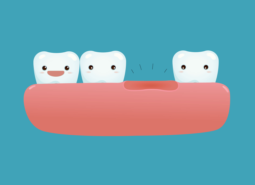 What to Do if Your Tooth Falls Out
