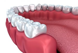 Subperiosteal Dental Implants