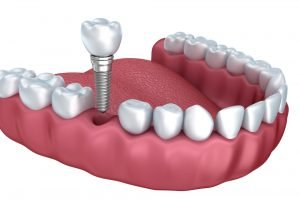 Endosteal Dental Implants