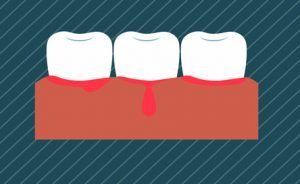 Bleeding Gums - Gum Disease