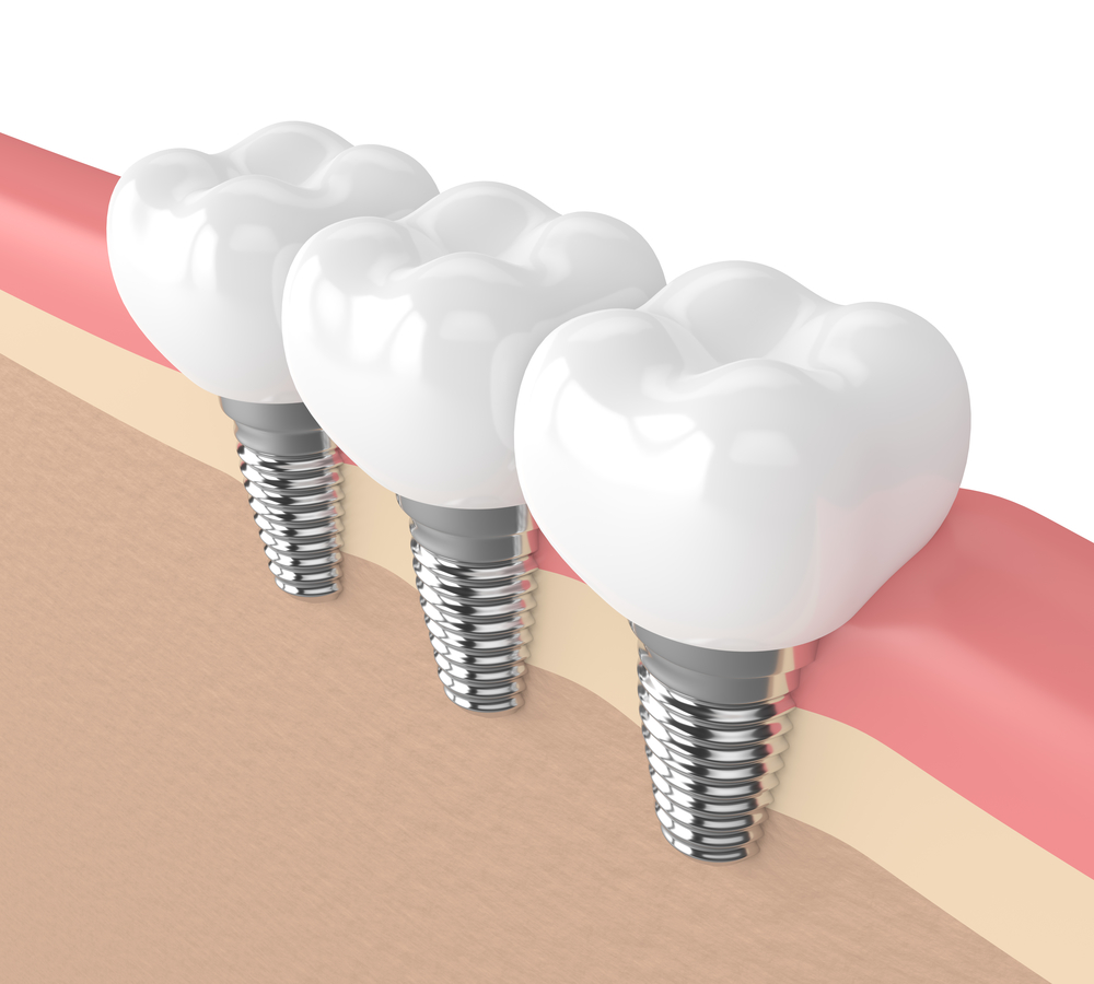 Six Tips to Help Your Dental Implants Last a Lifetime