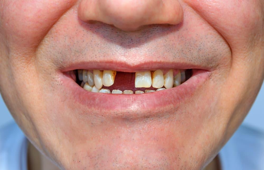 6 Reasons You May Lose Your Teeth