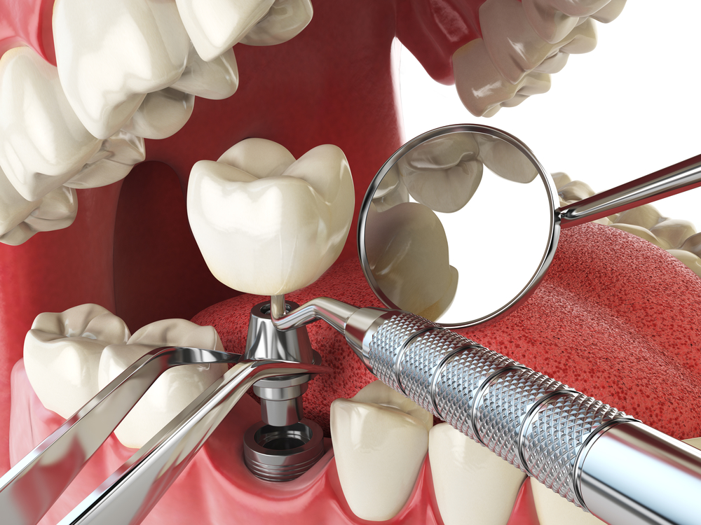 What You Need to Know About Single Tooth Implants