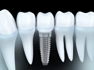 Why Someone Needs a Single Tooth Implant