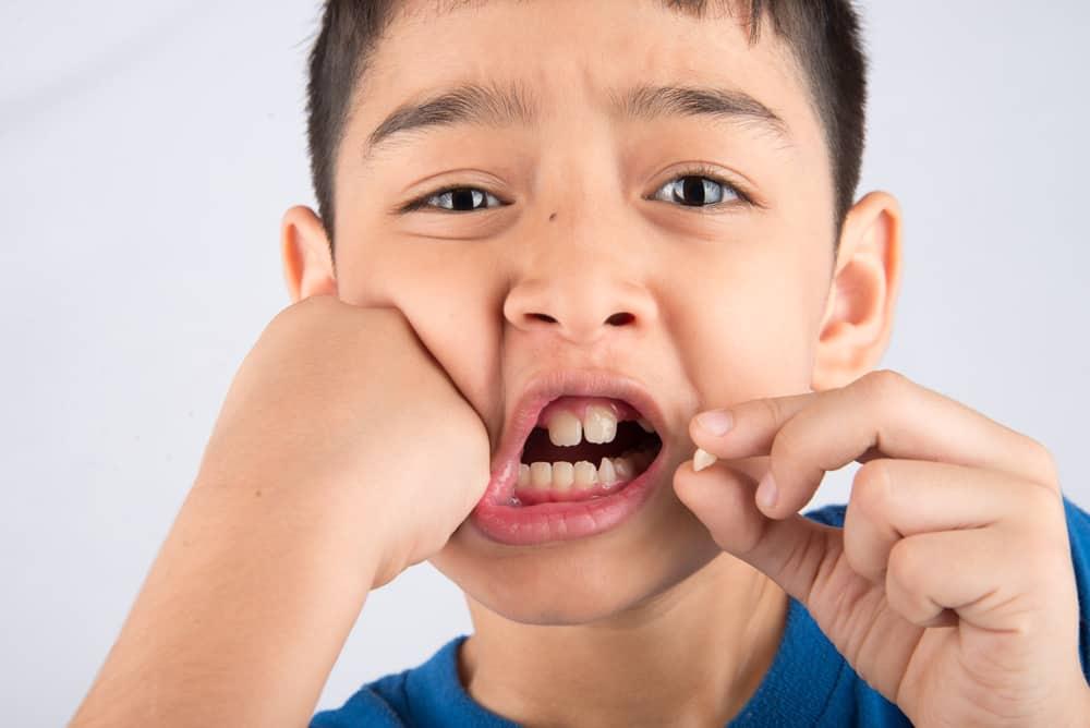 Can Children Get Dental Implants?