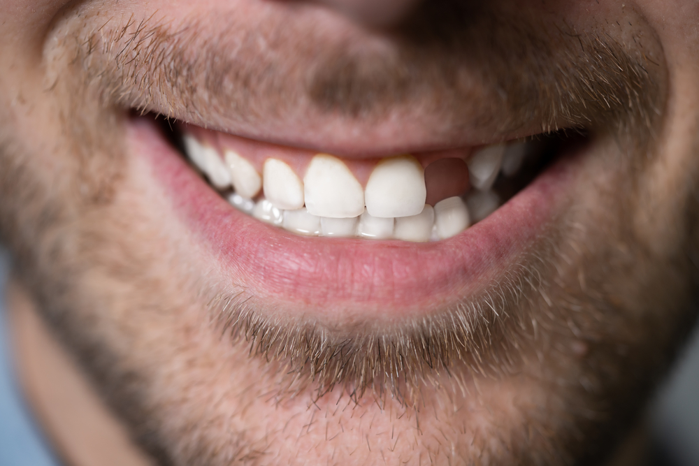 Three Tooth Replacement Options
