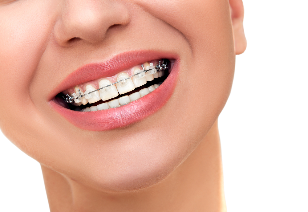 Do You Need Dental Sedation When You Get Braces?