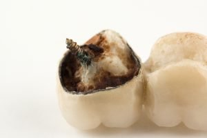 What Should You Do If You Encounter Problems With Your Dental Implants Due to Food?