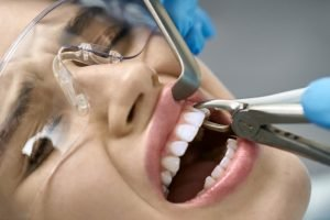 Dental Anxiety and Tooth Extractions