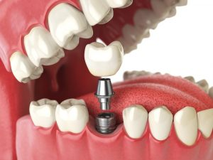 Replace Your Lost Tooth with Dental Implants